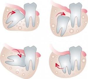 dibujos de pares de dientes retenidos y torcidos