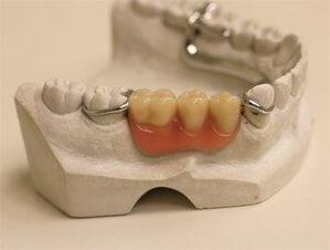 ¿cuando usar una dentadura postiza?