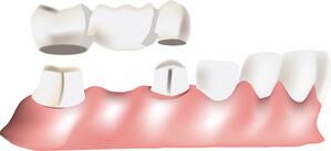 características de un puente dental fijo tradicional