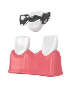 puente dental con resina