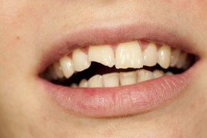 caracterísiticas sanitas dental premium