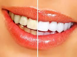 cobertura blanqueamiento sanitas dental