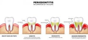 progreso de la periodontitis