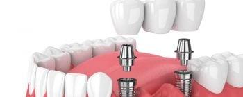 Cuántos implantes dentales se pueden poner al día