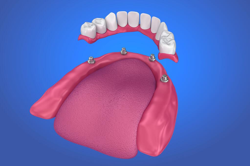 prótesis implantosoportada - sobredentadura