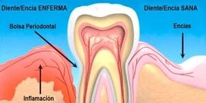 proceso de la inflamación de encías