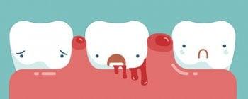 Sangrado de encías, pericoronaritis
