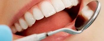 Revision dentista espejo