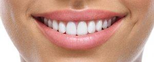 Una bella sonrisa implica además unos dientes perfectamente limpios