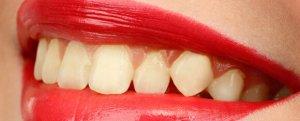 sonrisa dientes amarillos