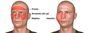 celulitis facial por infección de muela