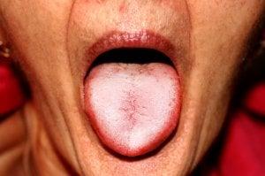 imágen de lengua blanca por saburra