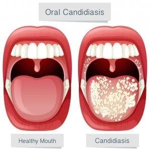 Lengua blanca por candidiasis oral
