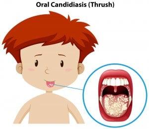 candidiasis oral en niños