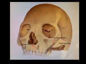 explicación de la ubicación del implante-cigomatico