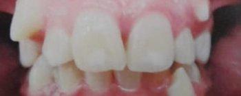 Maloclusión dental caracterizada por falta de espacio