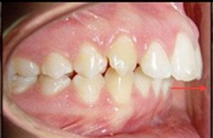 Se observa que los dientes superiores sobrepasan a los dientes inferiores.