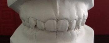 Cuando tus dientes superiores cubren más de lo debido tus dientes inferiores