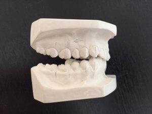 Los molares son los dientes encargados directamente de la masticación