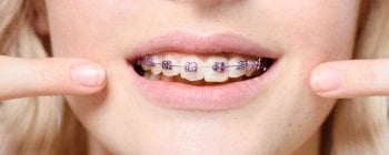 Cierre de diastema con ortodoncia