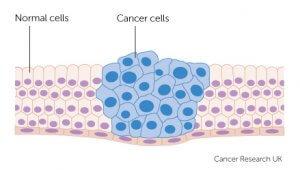 Cáncer - Carcinoma de células escamosas.