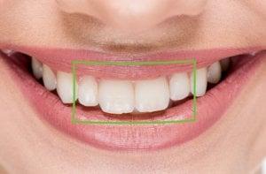 Los incisivos son los 4 dientes anteriores y sirven para cortar