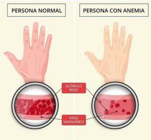 Síntomas de la anemia en la piel