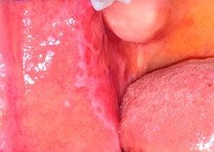líneas blancas en la boca por liquen plano oral