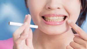 Síntomas de rechazo de implante dental por tabaquismo