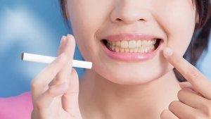 manchas blancas en las encías por consumo de tabaco