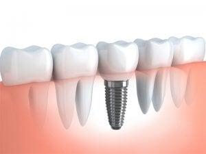 implante dental exitoso