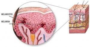 melanocitos