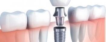 pasos para colocar un implante dental