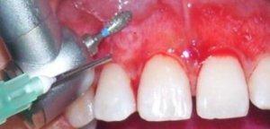 Mucoabrasión o tratamiento para las encías negras