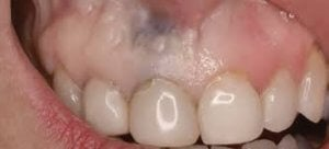 manchas negras en las encías, tatuaje por amalgama