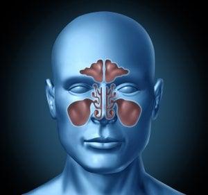 Sinusitis - Inflamación de los senos paranasales