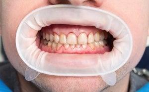 dientes manchados, fluorosis leve a moderada