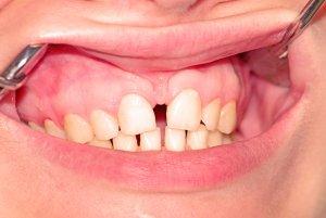 dientes separados por frenillo labial