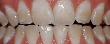 Hipoplasia dental