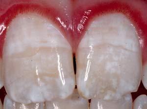 Fluorosis vs hipoplasia dental
