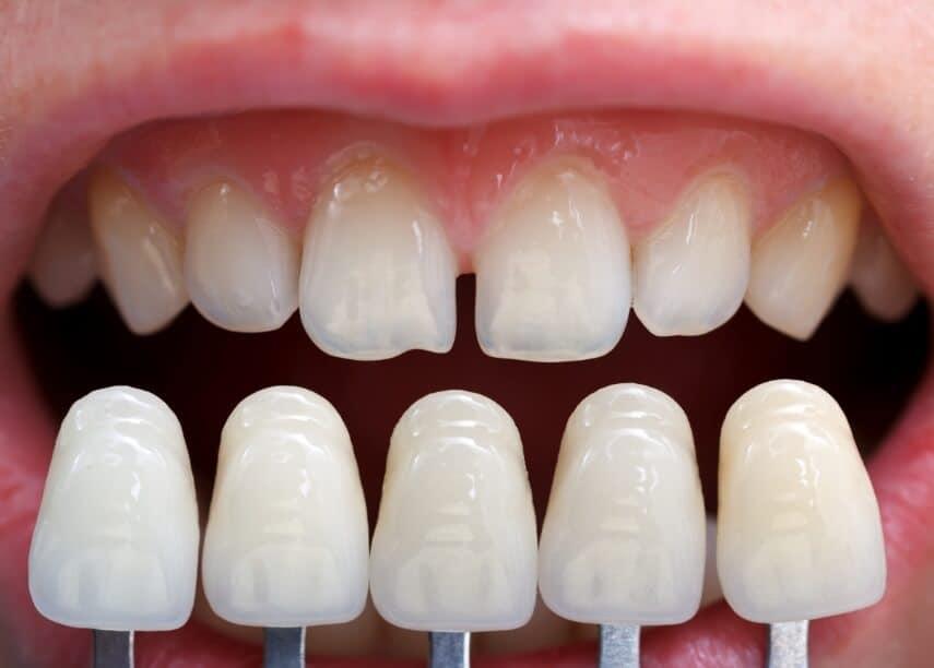 carillas dentales baratas