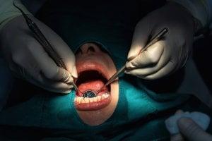 glosectomía de reducción