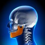 13198Mantenedor de espacio: tipos, cuándo son necesarios y su importancia en odontopediatría