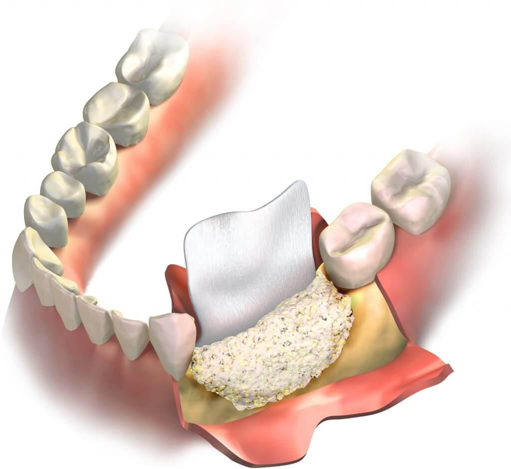 recreación de injerto de hueso dental