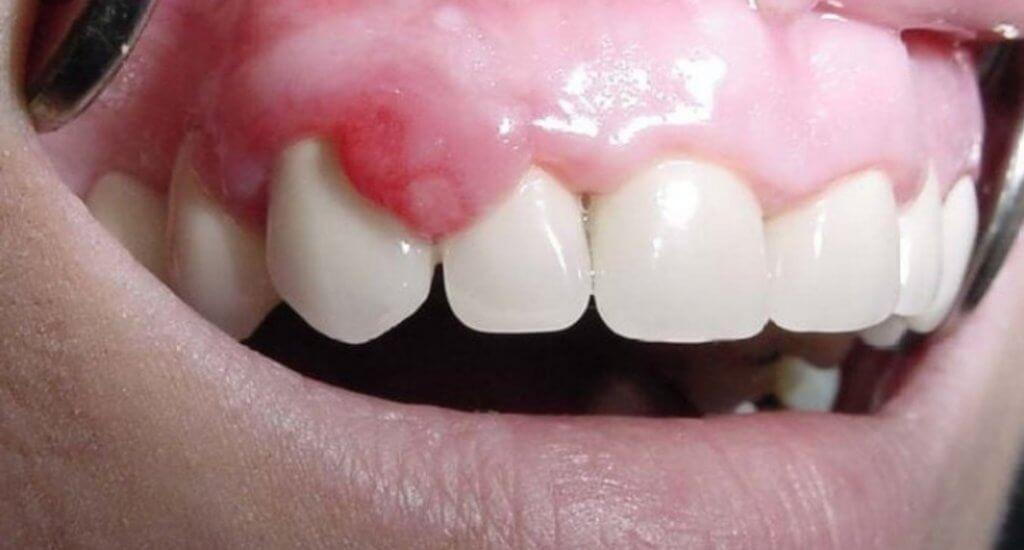 Imagen de un paciente con épulis