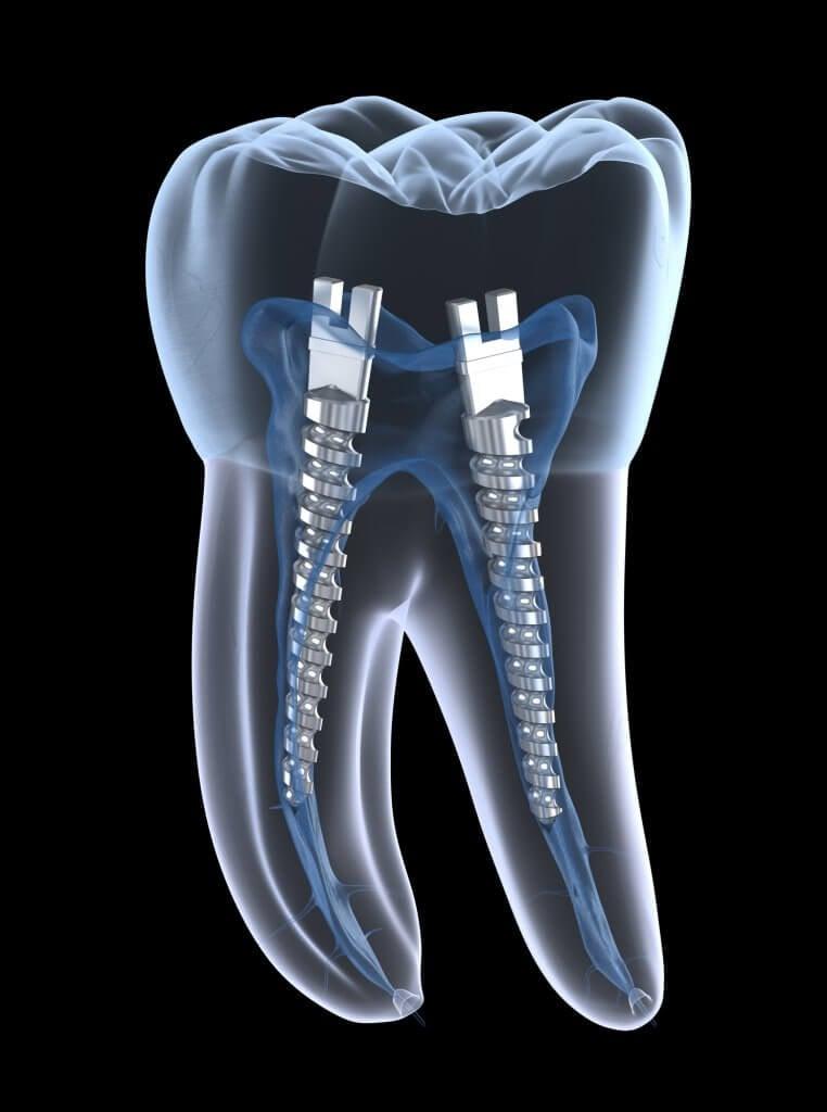 imagen de Perno dental