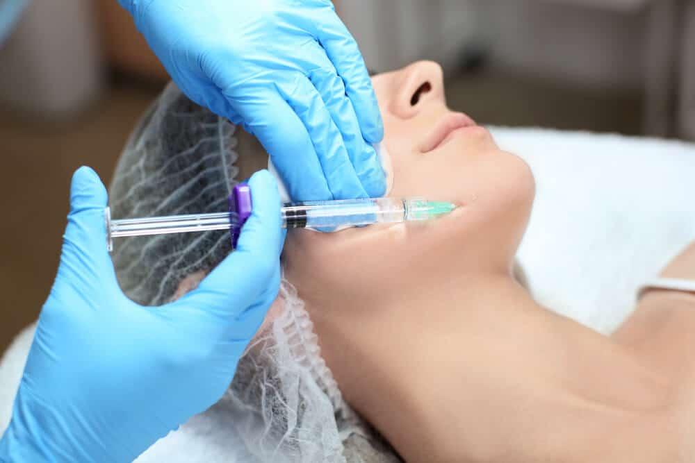 Inyección de ácido hialurónico en zona cercana a la boca
