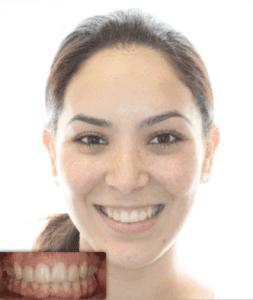 Ortodoncia antes y después de Invisalign