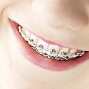 precios-ortodoncia