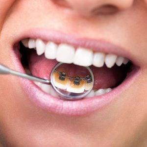 precio-ortodoncia
